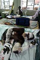 Akoli Rona lies in Lira Hospital with burns suffered in an attack Saturday Feb 21, 2004 on the Barlonyo IDP camp in Lira district in Northern Uganda, Monday February 23, 2004. She is one of 60 patients at Lira hoispital. Eight victims have died in the hospital and more than 190 died in the attack. The LRA attacked the camp Saturday Feb 21 in the late afternoon killing people with guns, machetes and by burning their huts with them inside. (Rick D'Elia)