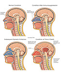 This medical exhibit shows four cut-away views of the head and brain illustrating the progression of a sinus infection into the brain. .The images include, normal anatomy, onset of infection to the frontal sinuses,  penetration of the infection through the thin bone layers of the skull into the brain cavity, and the final spread of infection throughout the cranium resulting in brain edema and hemorrhage. .