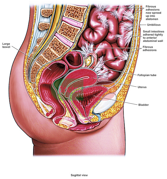 This medical exhibit features a single mid-sagittal view of the female abdomen and pelvic anatomy. Fibrous adhesions are shown extending from the abdominal wall to the structures of the small intestines, fallopian tube and the uterus. Other labels identify the strucutres of the umbilicus, large bowel and the bladder adjacent to the adhesions.