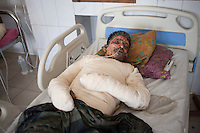 Elias, 31, one of the victims of petrol bomb attack on a truck cries in pain as he receives treatment at the Dhaka Medical College hospital in Dhaka, Bangladesh, March 22, 2015. Ten people, including eight workers, suffered burn injuries in a petrol bomb attack on a sand-laden truck at Moghirdhal on the Magura-Jessore road in Sadar upazila on Saturday night.  As the truck reached Moghirdhal around 8:00pm, miscreants hurled a petrol bomb at the vehicle. Soon after the petrol bomb attack, the truck went up in flames, leaving eight workers and the truck driver and his helper burnt.