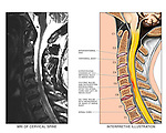 Whiplash Injury - C4-5, C5-6 and C6-7 Cervical Intervertebral Disc Herniations. Compares a single MRI film study (sagittal section cut through the cervical region) with an interpretive illustration revealing in detail the injuries of intervertebral discs C4-5, C5-6 and C6-7.