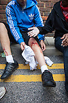© Joel Goodman - 07973 332324 . 08/08/2011 . London , UK . An injured looter on Clarence Road on the Pembury Estate in Hackney during a 3rd night of rioting and looting in London , which followed a protest against the police shooting of Mark Duggan in Tottenham . Photo credit : Joel Goodman
