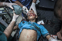 A Syrian child lies down in a trolley as he arrives at the hospital to get medical treatment after being severely injured by aircraft shelling carried out by Assad'a army over a residential neighborhood of Aleppo City. The Hospital located at the northeast area of the City was targeted four times by aircraft shelling, depite the bombing the Hospital still operating and giving medical care to the civilian population.