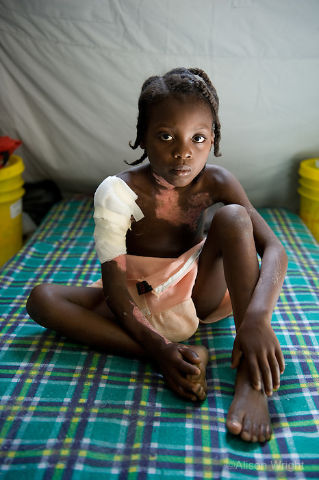 Devastation after the January 12,  2010 earthquake. Medicins sans Frontiers treating injured in makeshift clinic. Young injured girl