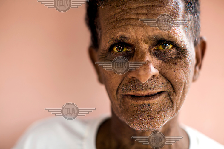 Jose de Moraes, 54, with the characteristic yellowing of the eyes, a result of yellow fever infection. In January, Jose de Moraes, went to his farm outside the town of Ipanema, and returned home very ill. He had extreme back and muscle pain, high fever and blurry vision from headaches and vomiting, he had caught yellow fever, but was one of the fortunate ones who survived after being admitted to the hospital early. Although he is recovering, and his appetite slowly returning, His eyes and skin are still yellow which is caused by jaundice from liver damage.