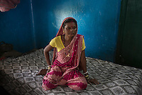 India – West Bengal: Bhudni Mahali, 47, hospitalized at Mogulkata Tea Estate hospital, in the Dooars region. After she was diagnosed with a thyroid disease seven months ago, the woman is struggling to work. Unsatisfied with the only doctor and the few medicines the tea estate hospital is equipped with, she will soon leave for the government facility of Banarhat.