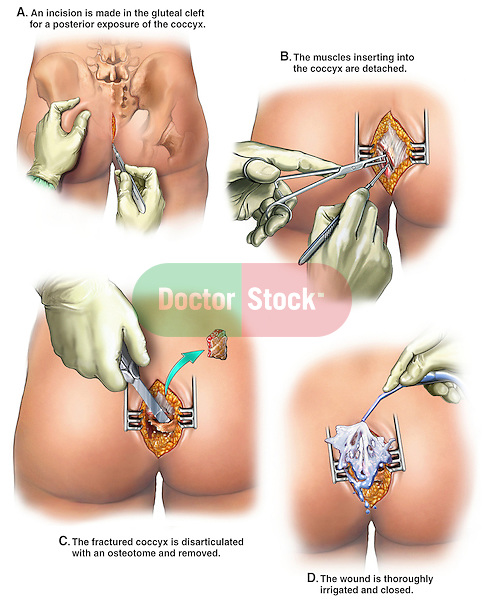 Fractured Coccyx (Broken Tailbone) with Coccygectomy Surgery. This medical exhibit reveals surgical details from a typical coccygectomy procedure (excision of the coccyx -tailbone) resulting from a slip and fall accident. It features multiple posterior views revealing the following: 1. Incision, 2. Debridement and muscle detachment, 3. Disarticulation and excision of the coccyx bone,  4. Irrigation and closure of the wound.