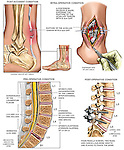 Ankle - Ruptured Achilles Tendon and Lower Back Injuries with Surgical Repairs. This medical illustration pictues post-accident conditions of the lower back and ankle. The low back injuries include multilevel disc pathologies, while the left ankle reflects an Achilles tendon rupture. A final post-operative view of the lumbar spine reveals  the pedicel screw and fixation rods placed during a follow up surgery.
