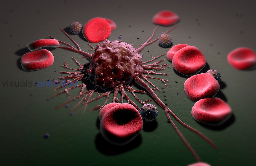 Metastasis is a complex series of steps in which cancer cells leave the original tumor site and migrate to other parts of the body via the bloodstream or the lymphatic system.  A cancer cell that has invaded the the vascular system is shown. It has an uneven surface and cytoplasmic projections. Royalty Free