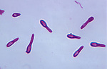Clostridium butyricum Bacteria, anaerobic prokaryotes with terminal spores. LM