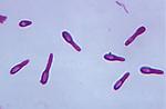 Clostridium butyricum Bacteria, anaerobic prokaryotes with terminal spores. LM
