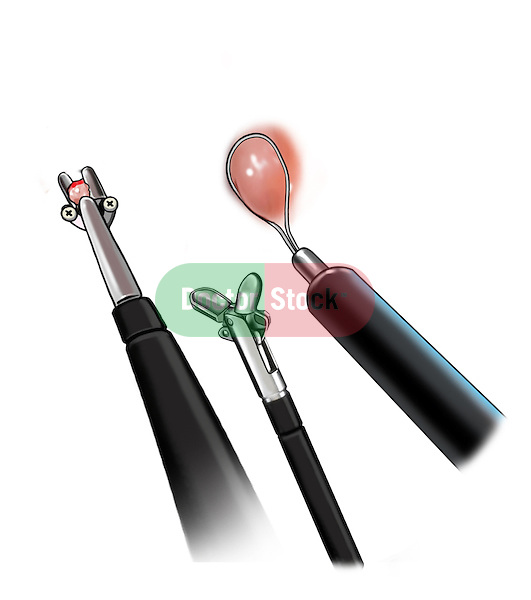Biopsy Instruments; this medical illustration is several views of bioposy instruments.