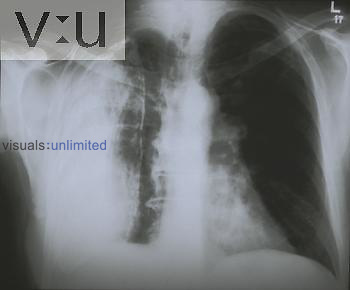 Chest x-ray - previous TB