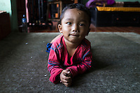 Sujal Tamang (2) lies on the floor as he plays with a ball in his aunt's rented apartment in Jorpati, Kathmandu, Nepal on 2 July 2015. Sujal was buried under the rubble of his collapsed house for 36 hours before rescuers found him injured with a broken leg next to his mother who was killed on the spot. Photo by Suzanne Lee for SOS Children's Villages