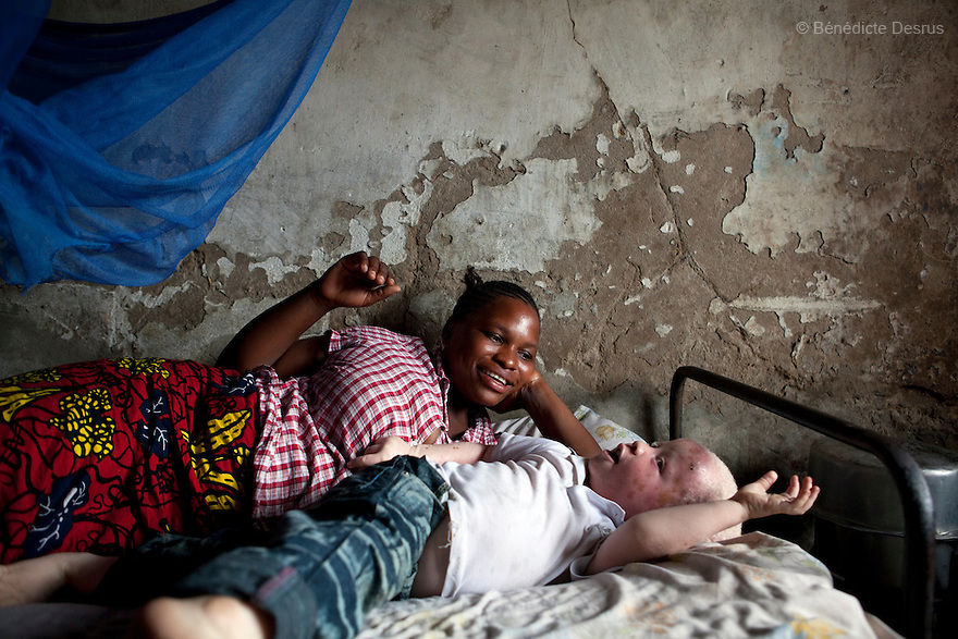 For Tanzania Albino Society (TAS)<br /> <br /> Mwanahawa Yusufu is a 27 year old woman without albinism. She lives with her 2 year old albino son, Yusufu Sereman, in a 6 m2 rented room in Dar es Salaam. When she gave birth to Yusufu, her husband got very angry and left her saying that she had slept with a musungu, a white man. Since then, she has never heard from him. Mwanahawa survives as a single parent roasting and selling Cassava and other small food items. Her son Selemani already has badly damaged skin from exposure to the sun, but she cant get him treat because she has difficulties to pay for the treatments. Usually developing by a very young age a facial rash of dark melanomas is often the precursor of the skin cancer that kills so many albinos in early adulthood. Albinism is a recessive gene but when two carriers of the gene have a child it has a one in four chance of getting albinism. Tanzania is believed to have Africa' s largest population of albinos, a genetic condition caused by a lack of melanin in the skin, eyes and hair and has an incidence seven times higher than elsewhere in the world. Over the last three years people with albinism have been threatened by an alarming increase in the criminal trade of Albino body parts. At least 53 albinos have been killed since 2007, some as young as six months old. Many more have been attacked with machetes and their limbs stolen while they are still alive. Witch doctors tell their clients that the body parts will bring them luck in love, life and business. The belief that albino body parts have magical powers has driven thousands of Africa's albinos into hiding, fearful of losing their lives and limbs to unscrupulous dealers who can make up to US$75,000 selling a complete dismembered set. The killings have now spread to neighboring countries, like Kenya, Uganda and Burundi and an international market for albino body parts has been rumored to reach as far as West Africa. Photo credit: Benedicte Desrus