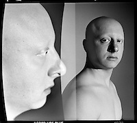 Alopecia Portraits