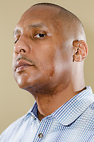 """FROM THE STORY: Claudiare Motley of Charlotte, North Carolina was shot in the jaw during an attempted carjacking in visiting Milwaukee for his high school reunion in June 2014. He learned about compensation from a liaison in the hospital and sent off his application about a month later. After his third surgery, his insurance carrier dropped him, leaving him truly desperate for financial aid. Wisconsin's compensation office told Motley he was eligible, but that he needed to wait to receive all his medical bills before they could determine a payout. Six months after he was shot, he graduated from law school. He read the victims compensation statute and learned about victims rights in Wisconsin. Between infections and surgeries to rebuild his jaw, he juggled phone calls with the hospital, the compensation office, the insurance company, and creditors. About two years after he applied for compensation, Wisconsin's compensation program paid $40,000 in medical bills to his doctor's office and hospital — the state's maximum award. Motley says the money was both a """"godsend"""" and a """"drop in the bucket.""""  As of early February 2018, Motley had undergone 10 surgeries and procedures. He currently owes more than $130,000 in medical expenses. Photographed at his home in Charlotte, NC Thursday, February 8, 2018. (Justin Cook for The Trace)"""