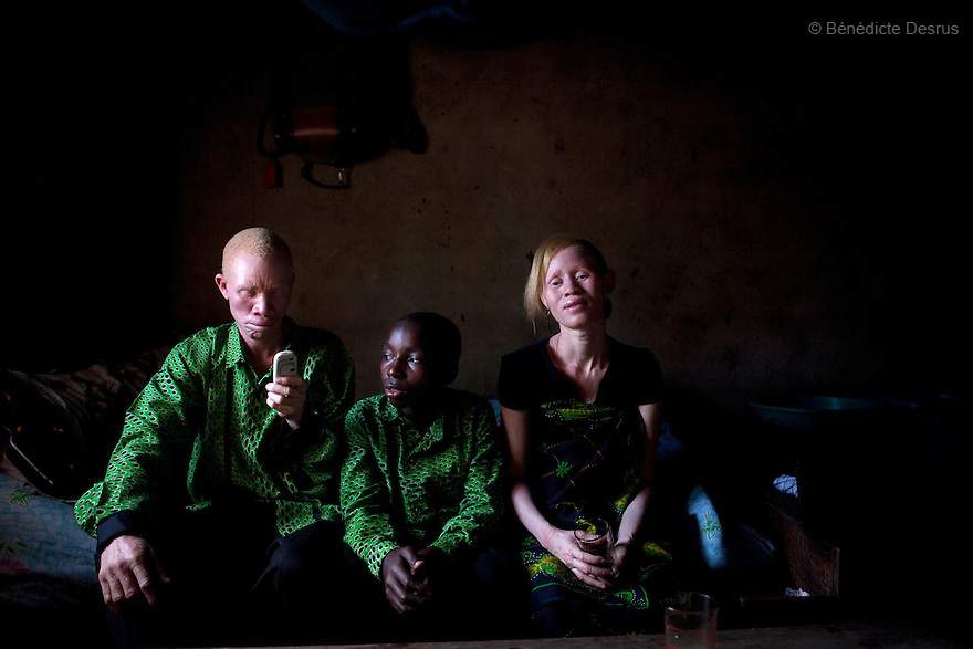 June 26, 2010 - Dar Es Salaam, Tanzania - Augostino Msisi, a 49 year old Tanzanian albino and his wife Janette Anatoli, a 27 year old Tanzanian albino at their home with their 15 year old son Kaloli who is not Abino. Albinism is a recessive gene but when two carriers of the gene have a child it has a one in four chance of getting albinism. Tanzania is believed to have Africa' s largest population of albinos, a genetic condition caused by a lack of melanin in the skin, eyes and hair and has an incidence seven times higher than elsewhere in the world. Over the last three years people with albinism have been threatened by an alarming increase in the criminal trade of Albino body parts. At least 53 albinos have been killed since 2007, some as young as six months old. Many more have been attacked with machetes and their limbs stolen while they are still alive. Witch doctors tell their clients that the body parts will bring them luck in love, life and business. The belief that albino body parts have magical powers has driven thousands of Africa's albinos into hiding, fearful of losing their lives and limbs to unscrupulous dealers who can make up to US$75,000 selling a complete dismembered set. The killings have now spread to neighboring countries, like Kenya, Uganda and Burundi and an international market for albino body parts has been rumored to reach as far as West Africa. Photo credit: Benedicte Desrus
