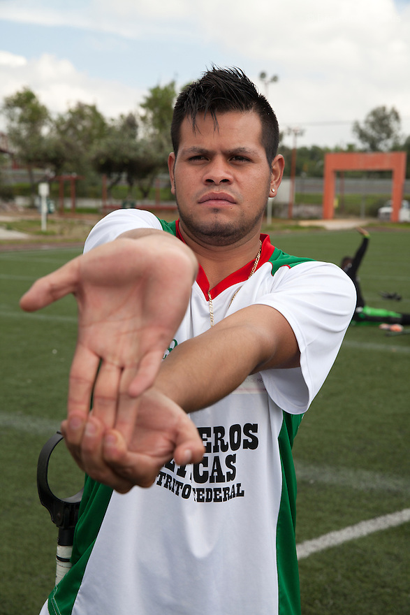 "Rodrigo Fernandez Loya, a player from Guerreros Aztecas, do warm up before a match against Los Dragones (""the Dragons"") in Deportivo Tlalli II in Talnepantla, Mexico on September 27, 2014. Rodrigo, 25, lost his right leg in 2012 when he saved a girl from an onrushing train. Involved in a local 'barrio' gang until his accident, he says that the self-discipline he has developed during his time with Guerreros Aztecas has helped him turn his life around and he is currently studying for his high school diploma. Rodrigo has made the shortlist and is one of the team's biggest hopes to represent Mexico at this December's Amputee Soccer World Cup in Sinaloa. Guerreros Aztecas (""Aztec Warriors"") is Mexico City's first amputee football team. Founded in July 2013 by five volunteers, they now have 23 players, seven of them have made the national team's shortlist to represent Mexico at this year's Amputee Soccer World Cup in Sinaloa this December. The team trains twice a week for weekend games with other teams. No prostheses are used, so field players missing a lower extremity can only play using crutches. Those missing an upper extremity play as goalkeepers. The teams play six per side with unlimited substitutions. Each half lasts 25 minutes. The causes of the amputations range from accidents to medical interventions – none of which have stopped the Guerreros Aztecas from continuing to play. The players' age, backgrounds and professions cover the full sweep of Mexican society, and they are united by the will to keep their heads held high in a country where discrimination against the disabled remains widespread. (Photo by Bénédicte Desrus)"