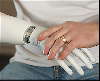 BNPS.co.uk (01202) 558833.Picture: Peter Willows..Chris puts on the bionic hand. ..Chris Taylor has become the first in the UK to be fitted with a bionic limb that has electronic fingers and thumb. Chris (58) from Ivybridge, Devon, lost his right hand when he fell off a jet-ski in 2009, but he has now been fitted with the £47,000 limb by specialists Dorset Orthopaedic.  Electrodes in the arm are able to sense muscle movements, and these signals are used to control electronic motors that move the fingers. Chris can now hold and grip a variety of different-sized objects, allowing him to carry out complex wiring work for his job as a service engineer.