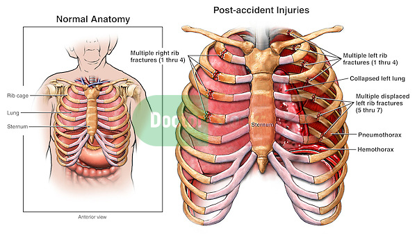 Chest Injury - Rib Fractures, Hemothorax and Pneumothorax.
