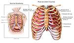 Chest Injury - Rib Fractures, Hemothorax and Pneumothorax.