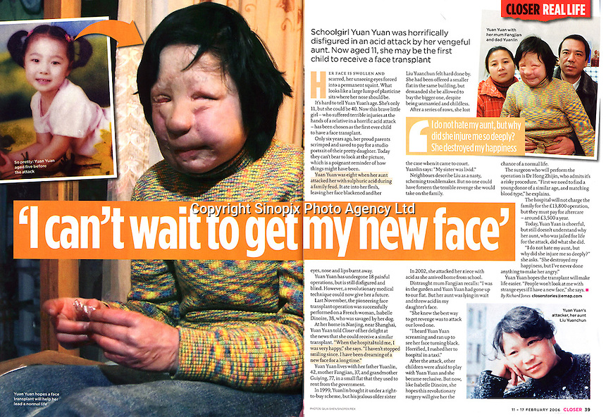 Face Transplant Surgery in China by © S.Q.Lai  / Sinopix