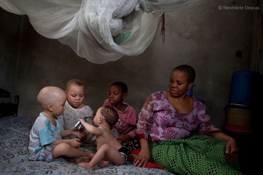 June 30, 2010 - Dar es Salaam, Tanzania - Fatima and her children. Fatima Husseni and her husband Hamisi Husseni are not Albino, although four of their five children are albinos. Albinism is a recessive gene but when two carriers of the gene have a child it has a one in four chance of getting albinism. Tanzania is believed to have Africa' s largest population of albinos, a genetic condition caused by a lack of melanin in the skin, eyes and hair and has an incidence seven times higher than elsewhere in the world. Over the last three years people with albinism have been threatened by an alarming increase in the criminal trade of Albino body parts. At least 53 albinos have been killed since 2007, some as young as six months old. Many more have been attacked with machetes and their limbs stolen while they are still alive. Witch doctors tell their clients that the body parts will bring them luck in love, life and business. The belief that albino body parts have magical powers has driven thousands of Africa's albinos into hiding, fearful of losing their lives and limbs to unscrupulous dealers who can make up to US$75,000 selling a complete dismembered set. The killings have now spread to neighboring countries, like Kenya, Uganda and Burundi and an international market for albino body parts has been rumored to reach as far as West Africa. Photo credit: Benedicte Desrus