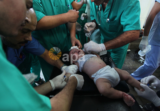 Palestinian medics treat an infant, whom medics said was wounded in an Israeli air strike, at a hospital in Rafah in the southern Gaza Strip August 4, 2014. A brief Israeli truce to allow aid to reach Palestinians ended on Monday amid accusations of strikes by both sides, while Jerusalem was rocked by two attacks that appeared to be a backlash against the war in Gaza. Gaza officials say 1,831 Palestinians, most of them civilians, have been killed and more than a quarter of the impoverished enclave's 1.8 million residents displaced. As many as 3,000 Palestinian homes have been destroyed or damaged. Israel has lost 64 soldiers in combat and three civilians to Palestinian cross-border rocket and mortar fire that has emptied many of its southern villages. Iron Dome interceptors, air raid sirens and public shelters have helped stem Israeli casualties. Photo by Ashraf Amra