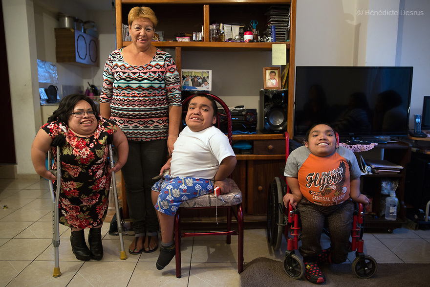 From left to right: Brenda Eduardo Torres, 32 - Joaquin Eduardo Torres Gil, 14 and Alfredo Ivan Torres Gil, 18 - pictured at their home in Mexico City, Mexico on February 16, 2017. The three siblings have been diagnosed with Morquio syndrome. Morquio syndrome is a rare inherited birth defect that is estimated to occur in one of every 200,000 births. The disease may not be visible at birth; symptoms usually begin between ages 1 and 3. Morquio syndrome is a progressive disease, meaning symptoms get worse as a child grows. Photo credit: Bénédicte Desrus