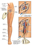Surgical Embolectomy Procedure. Accurately depicts surgery to remove embolism (embolus) from the femoral artery in the leg.