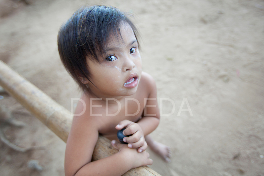 A young girl with Down Syndrome (or Down's Syndrome) stands in the dirt in a poor area of El Nido, Palawan, Philippines, the gateway to the Bacuit Archipelago.