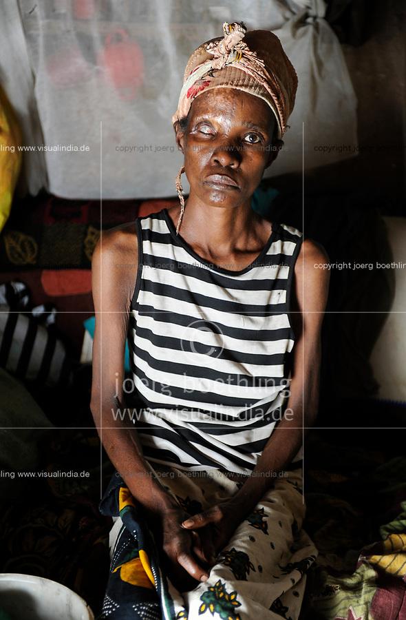 Afrika SAMBIA Ndola im Copperbelt, township Nkwazig, Anna Mulonga 47 Jahre ist an Aids HIV erkrankt und hatte eine Infektion die Auge und Gesicht zerstoert hat    Africa ZAMBIA Ndola woman Anna Mulonga 47 years with HIV aids and skin infection