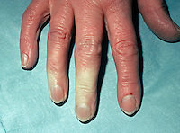 Raynaud's disease also known as Raynaud's phenomenom. Intermittent attacks of ischemia of the extremities of the body, especially the fingers, toes, ears, and nose, caused by exposure to cold or by emotional stimuli. This image may only be used to portray the subject in a positive manner..©shoutpictures.com..john@shoutpictures.com