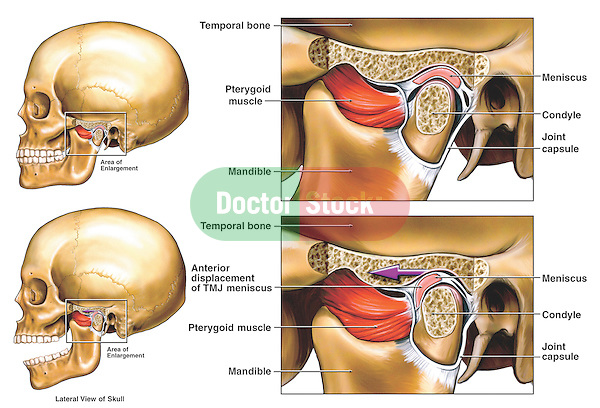 This medical exhibit depicts the anterior displacement of the temporomandibular joint, or TMJ, from the LEFT side. Two illustrations of a lateral (side) view of the skull show the mandible (jaw) open and closed, revealing the displacement of the TMJ meniscus. To the immediate right are two enlarged cut-away sections of the dysfunctional TMJ showing the area in more detail. Labeled structures include the pterygoid muscle, mandible, temporal bone, meniscus, condyle and joint capsule.....What is the Temporomandibular Joint (TMJ)?....The temporomandibular joint (TMJ) connects the lower jaw, called the mandible, to the temporal bone at the side of the head. If you place your fingers just in front of your ears and open your mouth, you can feel the joint on each side of your head. Because these joints are flexible, the jaw can move smoothly up and down and side to side, enabling us to talk, chew and yawn. Muscles attached to and surrounding the jaw joint control its position and movement. ....When we open our mouths, the rounded ends of the lower jaw, called condyles, glide along the joint socket of the temporal bone. The condyles slide back to their original position when we close our mouths. To keep this motion smooth, a soft disc lies between the condyle and the temporal bone. This disc absorbs shocks to the TMJ from chewing and other movements. ....Today, researchers generally agree that temporomandibular disorders (TMDs) fall into three main categories: ....ï myofascial pain, the most common form of TMD, which is discomfort or pain in the muscles that control jaw function and the neck and shoulder muscles; ....ï internal derangement of the joint, meaning a dislocated jaw or displaced disc, or injury to the condyle; ....ï degenerative joint disease, such as osteoarthritis or rheumatoid arthritis in the jaw joint. ....A person may have one or more of these conditions at the same time. ....Causes of TMD....Severe injury to the jaw or temporomandibular jo