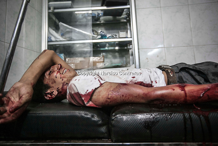 A Syrian teenager lies down in a trolley as he arrives at the hospital to get medical treatment after being injured by aircraft shelling carried out by Assad'a army over a residential neighborhood of Aleppo City. The Hospital located at the northeast area of the City was targeted four times by aircraft shelling, depite the bombing the Hospital still operating and giving medical care to the civilian population.