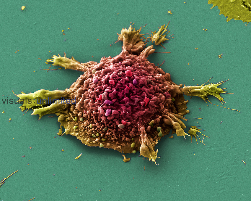 Cell cultured lung cancer cell. SEM X3000.