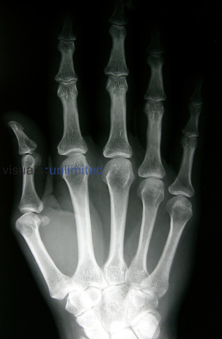 X-ray of a normal hand