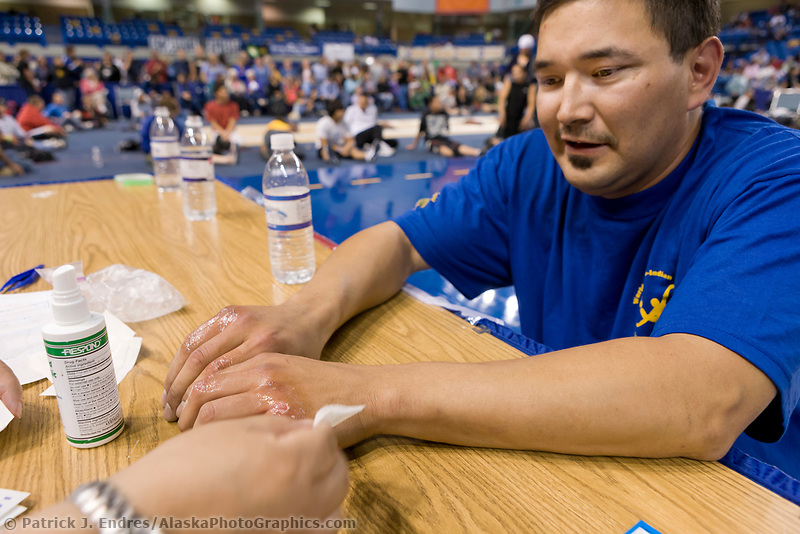 """Travis Cole from Hughs, Alaska, gets his knuckles tended to following the knuckle hop or seal hop competition at the 2008 World Eskimo Indian Olympics, Fairbanks, Alaska. A game of endurance, pain and strength. The object is to see how far one can go in a """"push-up"""" hopping position, with elbows bent and knuckles down."""