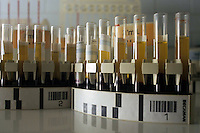 Centro donatori sangue della Croce Rossa Italiana. Blood donor center of the Italian Red Cross.Laboratorio per l' analisi del sangue. Laboratory analysis for blood test.....