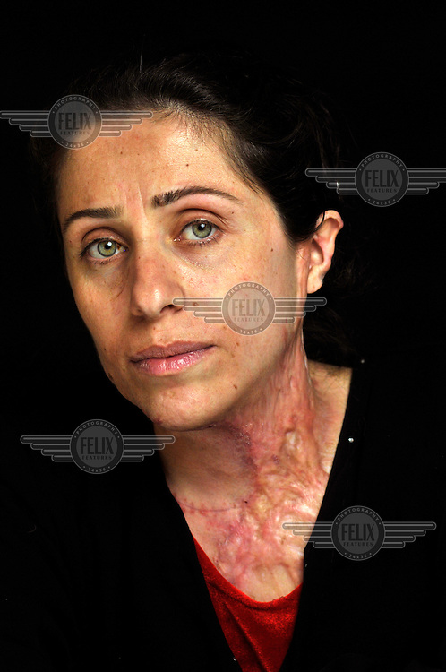 Khanda Faraj Mohammed (27) from Kirkuk, Iraq. She is a mother of three children and pregnant with her fourth child. One day she went to the market to buy some food for the family's evening meal when a car bomb exploded nearby. She sustained severe burns on her neck, chest, stomach, arms and hands. .