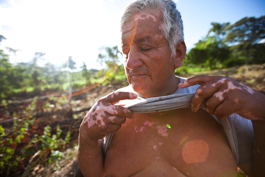 Vidal Masachi, 56,  has suffered numerous health problems living in close proximity to the Sur-Oeste Station.