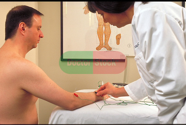 acupuncturist using electrical stimulation on acupuncture needles in patient's arm