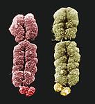 Fragile X Chromosomes. SEM