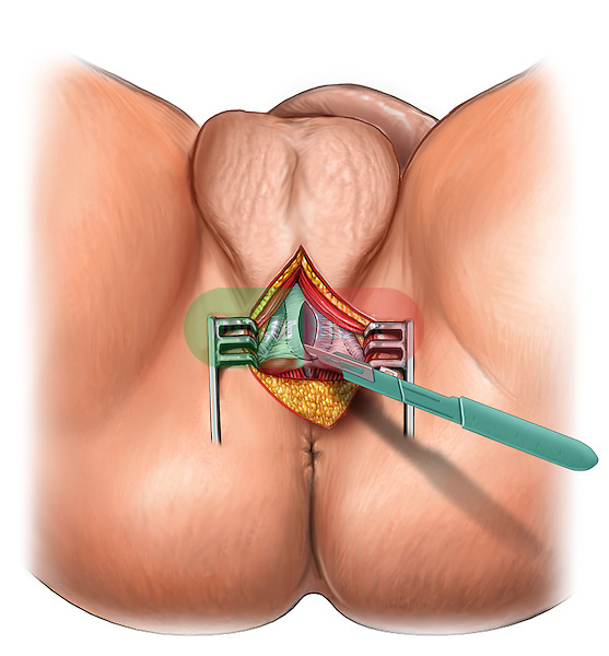 This stock medical image revelas a male perineal view with a scalpel creating a typical urethroplasty incision.