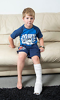 BNPS.co.uk (01202 558833)<br /> Pic: PhilYeomans/BNPS<br /> <br /> Oliver Briggs (5).<br /> <br /> A five-year-old boy suffered serious burns to his foot after standing on an abandoned barbecue at a busy beach.<br /> <br /> Oliver Briggs was enjoying an afternoon at the seaside when he stepped on the smouldering fire pit buried in the sand.<br /> <br /> He screamed in agony and his shocked mum Kristina Willmore carried him into the sea to cool the burn.<br /> <br /> Oliver was then rushed to A&E and had to be transferred to a hospital with a specialist burns unit.<br /> <br /> He suffered severe blistering to the sole of his right foot. Medics had to cut away the blistered skin and wrap Oliver in bandages.