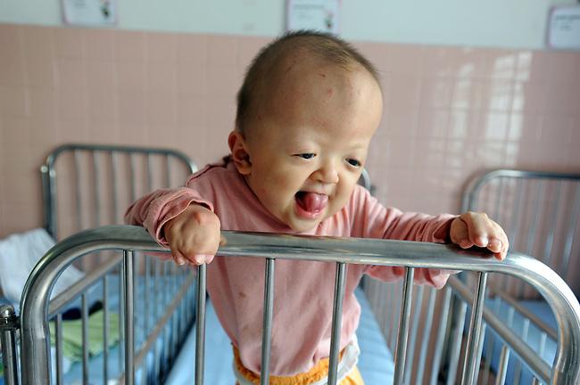 ベトナム、ホーチミン市内にあるツーズー病院内施設、平和村に暮らす肢体奇形の幼児。平和村には奇形、水頭症、精神的疾患などベトナム戦争中に使用された枯れ葉剤に含まれるダイオキシンの影響が原因と考えられる先天的障害をもつ子供約60人が生活している。