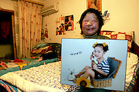 11 year old Liu Fangyuan (Yuan Yuan) sits while holding a picture of her taken in 2000 in the bedroom that she shares with her parents in Nanjing, China. In 2002, Yuan Yuan's aunt poured sulfuric acid on her face after losing a housing dispute with Yuan Yuan's father, The attack blinded and seriously disfigured Yuan Yuan, while her aunt is serving a life sentence in prison, Yuan Yuan and her family awaits a controversial face transplant...PHOTO BY SHEN / SINOPIX