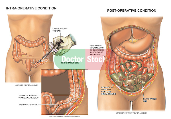 Laparoscopic Surgery with Bowel (Large Intestine) Perforation (Iatrogenic Perforated Bowel Injury).
