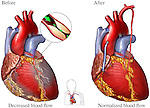 Coronary Artery Disease - Heart Bypass Surgery. This medical exhibit illustrates the heart with coranary artery disease with decreased blood flow.  The second image shows bypasses in place restoring the blood flow to normal.